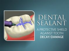 Dentaltown - Dental sealants are a type of plastic coating that will act as a barrier on teeth, protecting cavity-prone areas. Usually applied to chewing surfaces of back teeth, they are sometimes used to cover deep pits and grooves in other teeth.