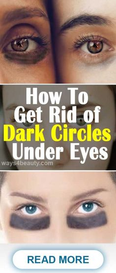 How To Get Rid of Dark Circles Under Your Eyes with Homemade Serum – Ways For Beauty Reduce Dark Circles, Dark Circles Under Eyes, Serum, Lighten Skin, How To Squeeze Lemons, Natural Solutions, How To Get Rid, Natural Makeup, Portrait