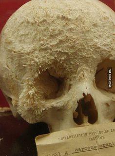 Bone Cancer patient's bone
