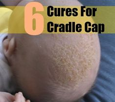 6 Cures For Cradle Cap
