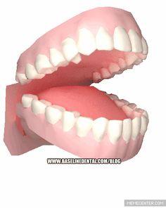 Meth Mouth. #funny #dental #gif #methmouth #dentist www.baselinedental.com/blog