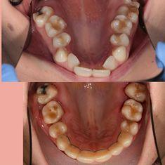 Teeth Implants, Dental Implants, Severe Tooth Pain, Teeth Whitening Cost, Dental Costs, Dental Bridge Cost, Dental Videos, Family Dental Care, Dental Fillings