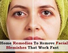 Remove Facial Blemishes - 7 Easy Home Remedies That Work Fast