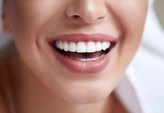 Healthy White Smile Close Up. Beauty Woman With Perfect Smile, Lips And Teeth. Beautiful Girl With Perfect Skin. Teeth Whitening Stock Photo - Image of beautiful, mouth: 137686002 Teeth Whiting At Home, Close Up, Crooked Teeth, Dental Veneers, Veneers Teeth, Porcelain Veneers, Dental Cosmetics, Dental Procedures