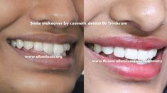 Smile makeover by expert cosmetic dentist Dr Trivikram in Bangalore.Gone are the days when you had to settle for chipped, stained and crooked teeth or bad ugly filling and crowns. Read more: http://www.allsmilesdc.org/cosmetic-dentistry/ .  #CosmeticDentist #SmileMakeover #Bangalore