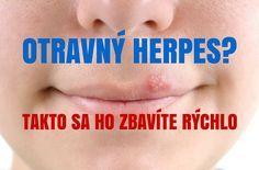 Každý človek sa už aspoň raz v živote musel pasovať s herpesom, ktorý svrbí, puchne a po vyschnutí sa mení na nesympatickú chrastu. Od chvíle keď ho zbadáte určite začínate pátrať po najúčinnejších spôsoboch na jeho odstránenie. Neponáhľajte sa do lekárne kupovať drahé krémy, ale radšej siahnite po domácich prírodných receptoch, ktoré vám pomôžu vyliečiť a zbaviť sa herpesu.