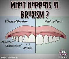 What happens in bruxism? Teeth are worn down, flattened, fractured or chipped, exposing deeper layers of your tooth.