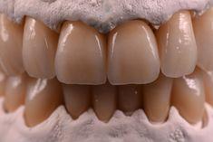 Dental Technician, Dental Veneers, Dental Art, Teeth, Smile, Al Dente, Dental Laboratory, Studio, Dental Anatomy