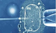 Assisted Reproductive Technology (ART) is reproductive technology used for infertility treatments to achieve pregnancy in procedures such as fertility medication,best fertility specialist, artificial insemination, in vitro fertilization and surrogacy.For more info: www.infertilitysearch.com