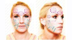 Soft Lifting con fili: lifting viso con fili riassorbibili in PDO