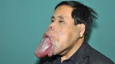 giant tongue, 25 inches long, ten wide and seven thick, makes the Chinese Wang Youping, 34, unable to open his mouth for 21 years