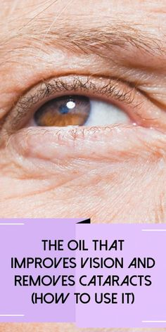 The Oil That Improves Vision and Removes Cataracts (How to Use It) - Organic Remedies Tips Home Remedy For Cough, Cold Home Remedies, Cough Remedies, Holistic Remedies, Herbal Remedies, Holistic Dr, Natural Remedies For Arthritis, Natural Remedies For Anxiety, Natural Health Remedies