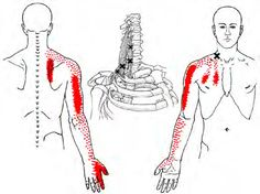 Scalene - Trigger Point Map