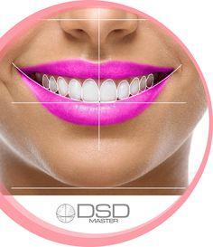 Digital Smile Design (DSD) - Maria Cardenas D.M.D Dental Art, Dental Teeth, Teeth Implants, Dental Implants, Perfect Smile Teeth, Dentist Logo, Beautiful Teeth, Dental Veneers, Al Dente