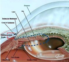 The angles formed by the cornea and the iris in the front part of the eye (anterior chamber) are closed or if they are open. The technical term for this angle is the iridocorneal angle (denoted by red brackets in the figure below). I ascertain the state of the iridocorneal angle through gonioscopy, a diagnostic test that allows me to visualize the anterior chamber in detail.