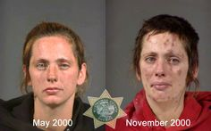 From drugs to mugs: Disfiguring toll of addiction - Slideshows and Picture Stories - msnbc.com