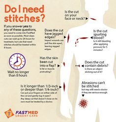 Sometimes it's hard to know when you need stitches and when you don't. This guide can help. #health
