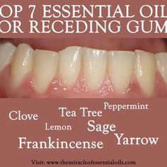 Grow Back Gums with Essential Oils for Receding Gums