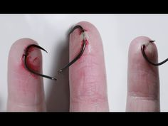 Putting Fishhooks Through My Fingers