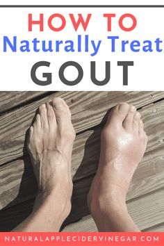 These natural foot care remedies will help with treating gout. These natural treatments and remedies for gout will help to naturally heal the common ailments. These natural remedies for gout can help relieve your discomfort. Allergy Remedies, Eczema Remedies, Sleep Remedies, Herbal Remedies, Home Remedies For Gout, Natural Remedies For Gout, Natural Treatments, Leiden