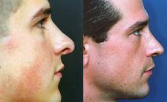 case3-side Bulbous Nose, Rhinoplasty Before And After, E 3, Get Directions, Tobias, Nose Jobs, Photo Galleries, Blog, Rhinoplasty