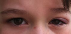 Eye Lid Infection / http://www.kidsloveacupuncture.com/2012/12/14/a-stye-in-my-eye-other-eye-irritations/
