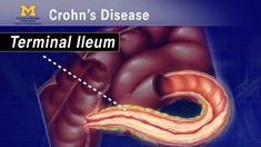 """Great Video and easy to understand for all. """"IBD School 102"""" - What is Crohn's Disease? - klomax -YouTube"""