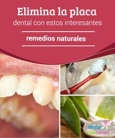 Elimina la placa dental con estos interesantes remedios naturales  Esa capa amarillenta que se va formando en la superficie de los dientes es lo que se conoce como placa dental.