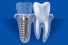 معایب ایمپلنت دندان مهمترین عیب و مشکلی که ایمپلنت دندان در نظر مراجعه کنندگان دارد هزینه زیاد این روش در مقایسه با بریج دندانی و دندان مصنوعی می باشد. هنگامی که شما به ایمپلنت فول موس نیاز داشته باشید این هزینه بیشتر نیز خواهد بود.اگر میخواهید که مقدار دقیق این هزینه ها را بدانید پیشنهاد می کنیم که از ویزیت آنلاین رایگان کلینیک دندانپزشکی بهره مند شوید.همکاران ما تا ساعت 2 بامداد پاسخگوی شما عزیزان می باشند. Dental Implants, Dental Care, Google Search, Dental Caps, Dental Health
