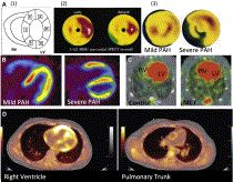 Right Ventricular Adaptation and Failure in Pulmonary Arterial Hypertension — ScienceDirect