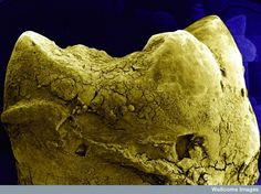 Your tooth: | 26 Things You Never Want To See Under A Microscope