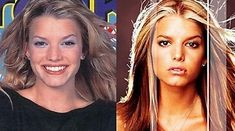 Who doesn't have a nose job in the Entertainment wolrd?Jessica Simpson bef… Who doesn't have a nose job in the Entertainment wolrd?Jessica Simpson before and after nose job Jessica Simpson Hair, Kardashian, American Girl, Bigger Eyes, Small Nose, Lip Augmentation, Celebrity Plastic Surgery, Celebrities Before And After, Under The Knife