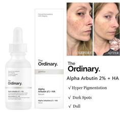 The Ordinary Alpha Arbutin + HA Concentrated Whitening Face Serum Grab your Discounted The Ordinary Alpha Arbutin + HA Concentrated Whitening Face Serum while the store LAUNCH DISCOUNT is on. Beauty Care, Beauty Skin, The Ordinary Skincare Guide, The Ordinary Alpha Arbutin, Haut Routine, Best Acne Products, The Face, Whitening Face, Les Rides