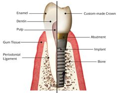 Do you know that is the most advanced and reliable way to replace your lost teeth? No prize for the correct answer, which is 'dental implants'. They are unlike any other replacement teeth. They look and feel so natural that you won't miss your real teeth. However, they can be a bit on the steep side, so you have to think carefully before deciding to receive them.