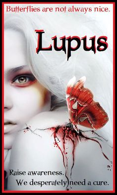 Lupus Awareness  #lupus