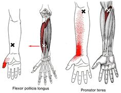 Pronator Teres trigger point diagram, pain patterns and related medical symptoms. Also shown in this diagram is the flexor pollicis longus. The myofascial pain pattern has pain locations that are displayed in red and associated trigger points shown as Xs. Acupressure Massage, Acupressure Treatment, Acupressure Points, Qi Gong, Yoga, Dry Needling, Referred Pain, Healthy Spine, Trigger Point Therapy