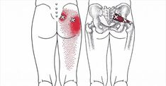 10 Piriformis Stretches To Help You Get Rid Of Sciatica, Hip And Lower Back Pain. Hip and lower back pain can come as a result of an irritation of the sciatic nerve. This pain can spread downwards and can affect the limbs and the feet. Sciatica Stretches, Sciatica Relief, Sciatic Pain, Hip Stretches, Piriformis Exercises, Muscle Stretches, Sciatica Massage, Hip Pain Relief, Scoliosis Exercises