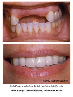 Dental implants Learn more about Dental Implants www.18004Smiles.Com #sandiego