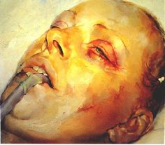 Jenny Saville - woman undergoing plastic surgery. A compellingly repulsive image which is exquisitely painted. But is it repulsive because it resembles violent death, or because it shows what women will undergo to conform to conventional standards of beauty?