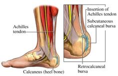 Are you running with pain in your heel? It could be Achilles Tendonitis.