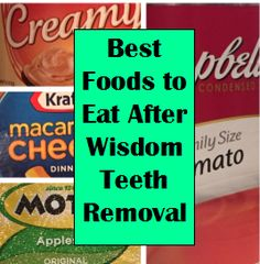 What Foods To Eat After Removing Wisdom Teeth