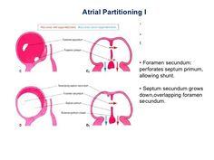 Image result for foramen primum and secundum
