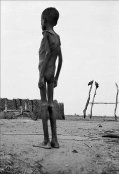 Tom Stoddart, Sudan - I pinned this haunting image because l believe we owe it to this young boy not only to feel his pain and suffering, but to also be the helping hands of God in whatever way we can. Kids Around The World, We Are The World, Around The Worlds, Poverty And Hunger, Bless The Child, African Children, War Photography, Powerful Images, Precious Children