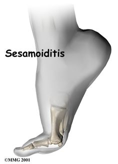 Sesamoiditis… – Trick to a Gout-Free Life. Broken Big Toe, Foot Anatomy, Stress Fracture, Types Of Surgery, Hip Problems, Body Joints, Tight Hip Flexors, Physical Therapy