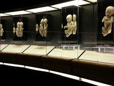 OMSI Prenatal Exhibit- Incredible display of miscarried babies shows the humanity of preborn children