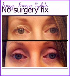 Get rid of those saggy, droopy eyelids without surgery! Okay, this fix takes some dedication, but so does surgery...