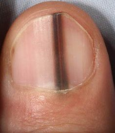 Did you know that your fingernails can provide clues to your overall health? Normal, healthy nails should appear smooth and have consistent coloring, but as you age, you may develop vertical ridges, or your nails may be a bit more brittle. Nail Health Signs, Fingernail Health, Bad Nails, Psychological Well Being, Lines On Nails, Striped Nails, Cancer Sign, Healthy Nails, Signs