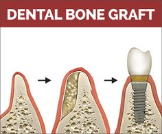 Why are bone grafts important? This is a great pic to show why! #granddentalgroup