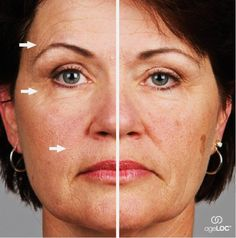 ageLOC Galvanic Spa makes the difference.