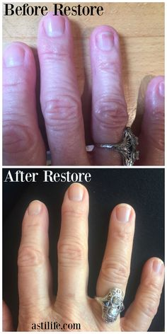"Beat Nail Fungus Naturally. From an actual ASTI Life Restore customer. http://blog.astilife.com/restore-prevent ""I have been using Restore on my nails for 3 months now and my nails are completely healthy again! The nail reattached to the bed quickly and began to clear up. They are now growing out and have not been damaged at all. I highly recommend Restore by ASTI Life. It cured my nail fungus."" ~Lee V."